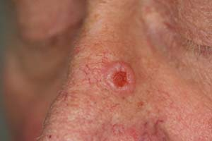 basal-cell-carcinoma-2