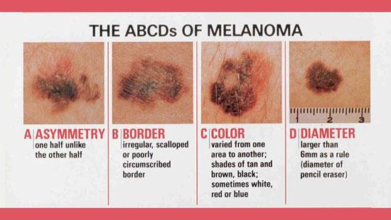 abcd-melanoma